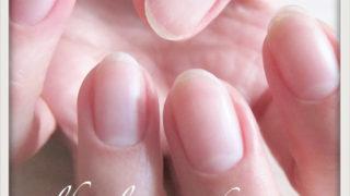 甘皮の切り過ぎで流血も、キューティクルケアで目指せ美爪!1